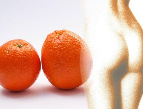 skórka pomarańczowa, cellulit